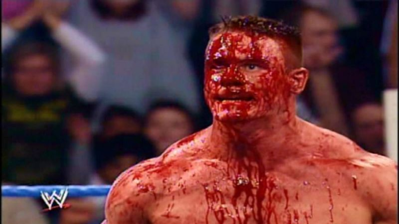 Fake sport, real pain: Major injuries suffered during WWE matches